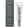 Acne fluid